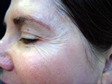 botox przed leczeniem2